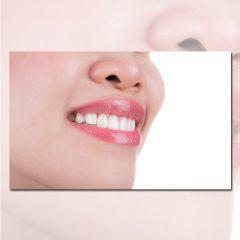 دانلود تصویر استوک لبخند با دندان سفید